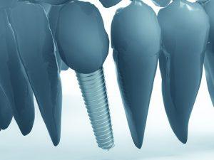 implantat schaubild